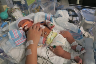 First day in the NICU. It was so hard seeing our tiny baby covered in wires and barely able to make a sound.